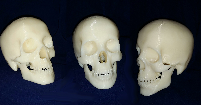 Image of 3D Printed Skull